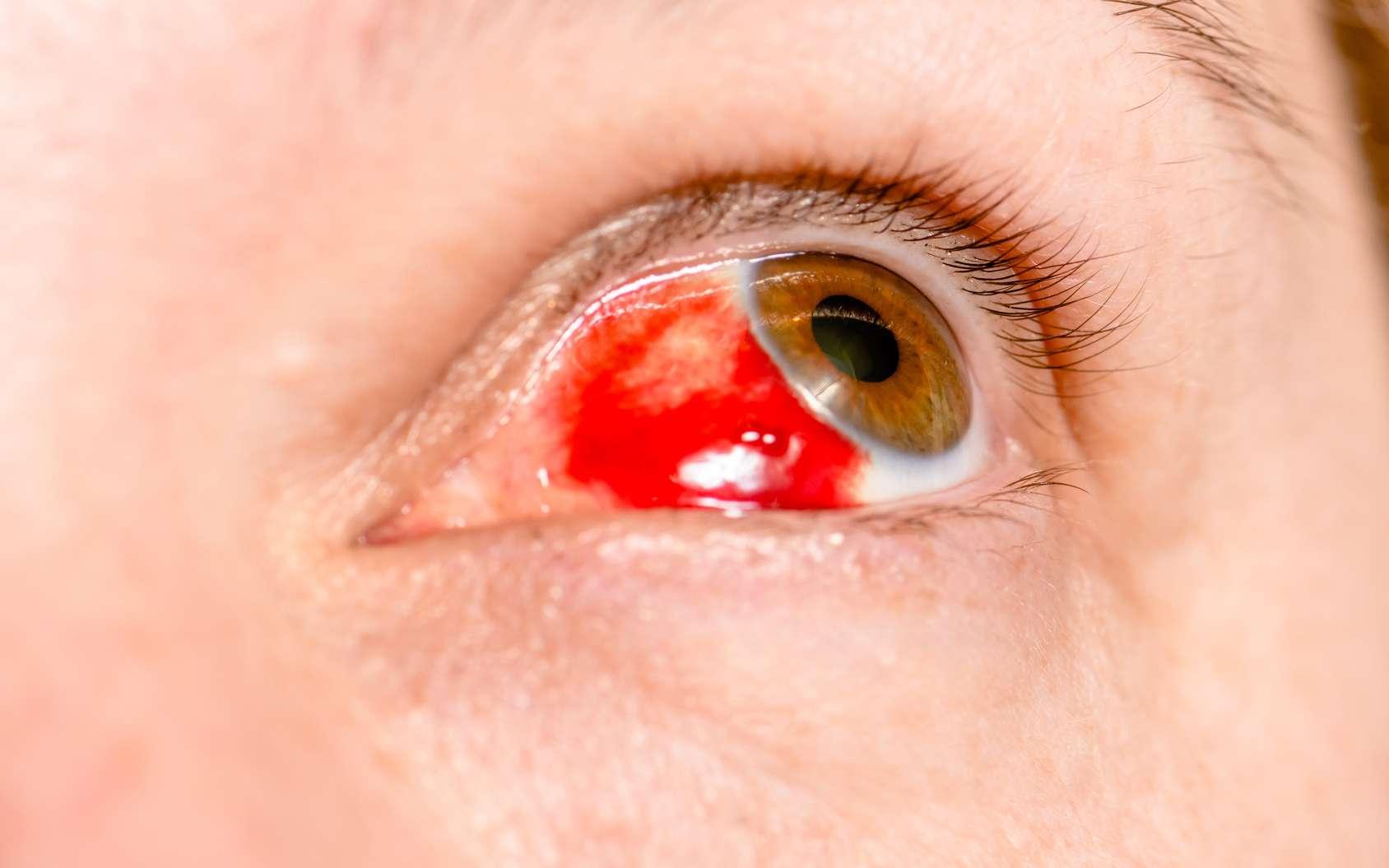 Une tache de sang dans l'œil est la plupart du temps bénigne et se guérit spontanément. © haoka, Fotolia