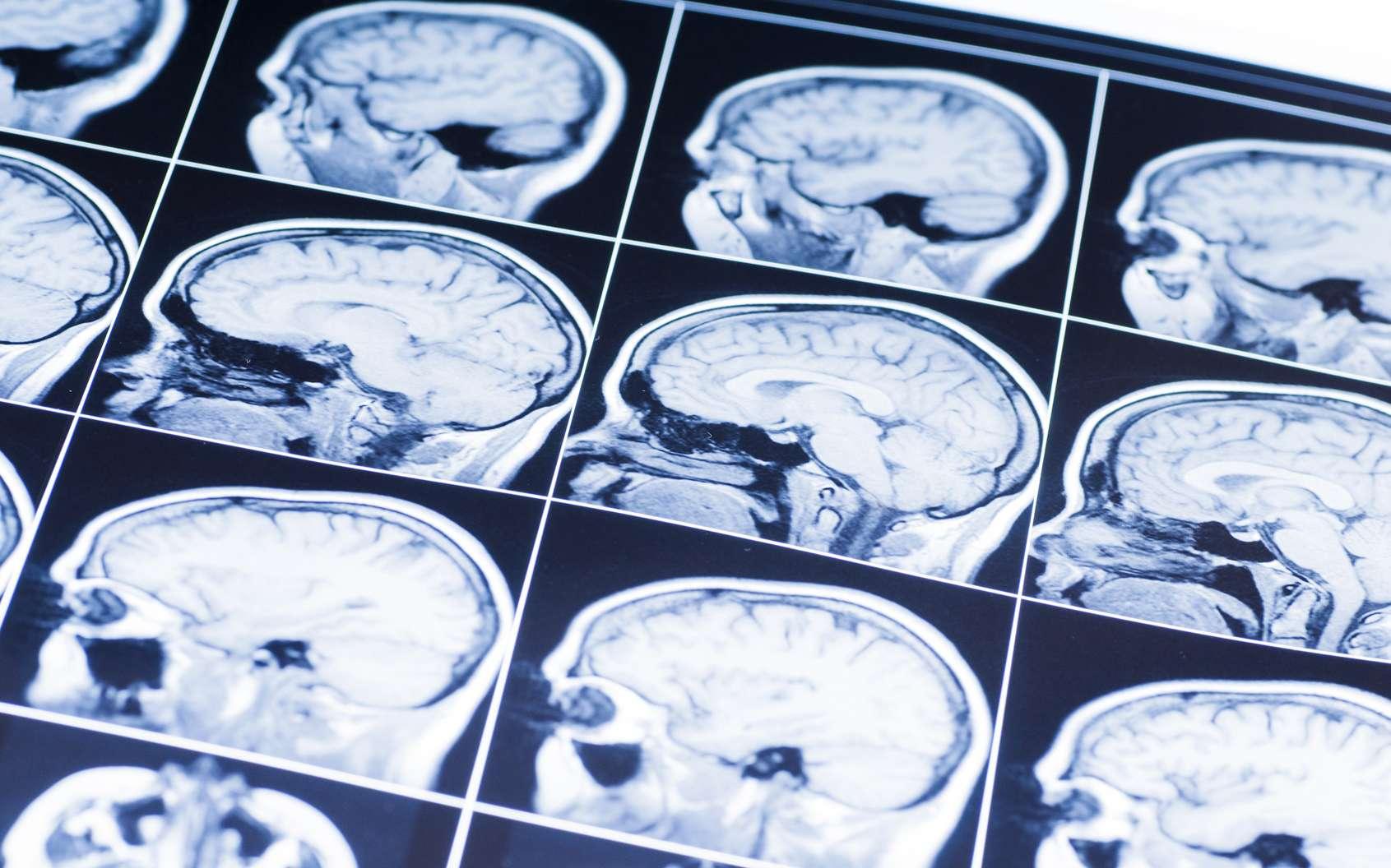 Le diagnostic des tumeurs du cerveau peut être complété ou précisé par l'outil informatique. C'est dans ce but que des chercheurs ont entraîné un ordinateur à reconnaître les tumeurs grâce au machine-learning, ou apprentissage automatique. © Сергей Лабутин/Fotolia