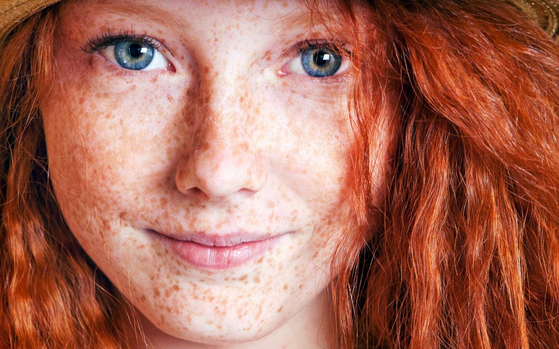Pour la première fois, des chercheurs ont démontré un lien entre un gène et le risque plus élevé de mélanome chez les personnes aux cheveux roux. © Nina Malyna, Shutterstock