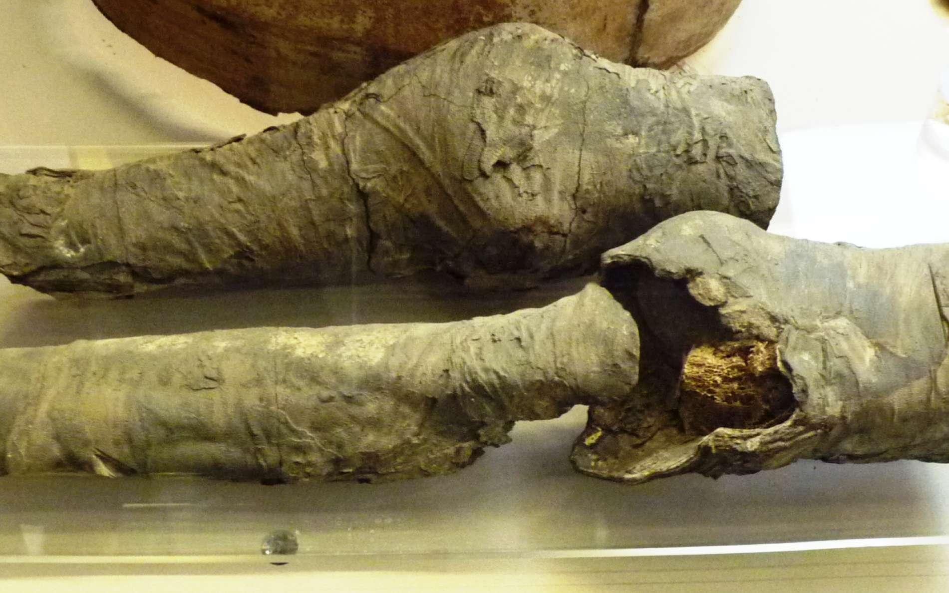 Ces fragments d'une paire de jambes momifiées sont exposés au musée des antiquités égyptiennes de Turin. On pense maintenant qu'il s'agit bien de reste de la momie de la favorite de Ramsès. © Joann Fletcher