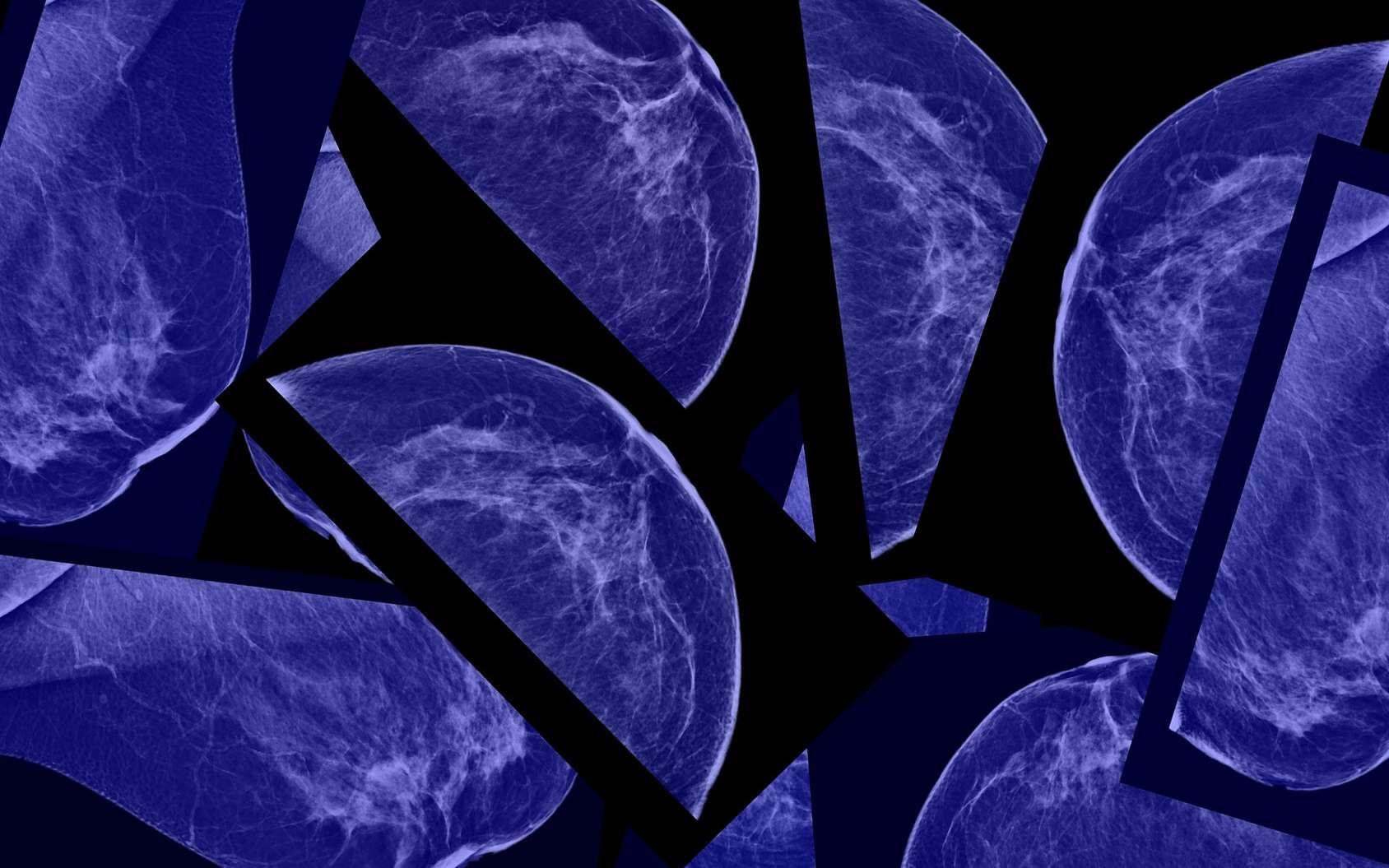 La mammographie détecterait trop de petites tumeurs sans danger. © flik47, Fotolia