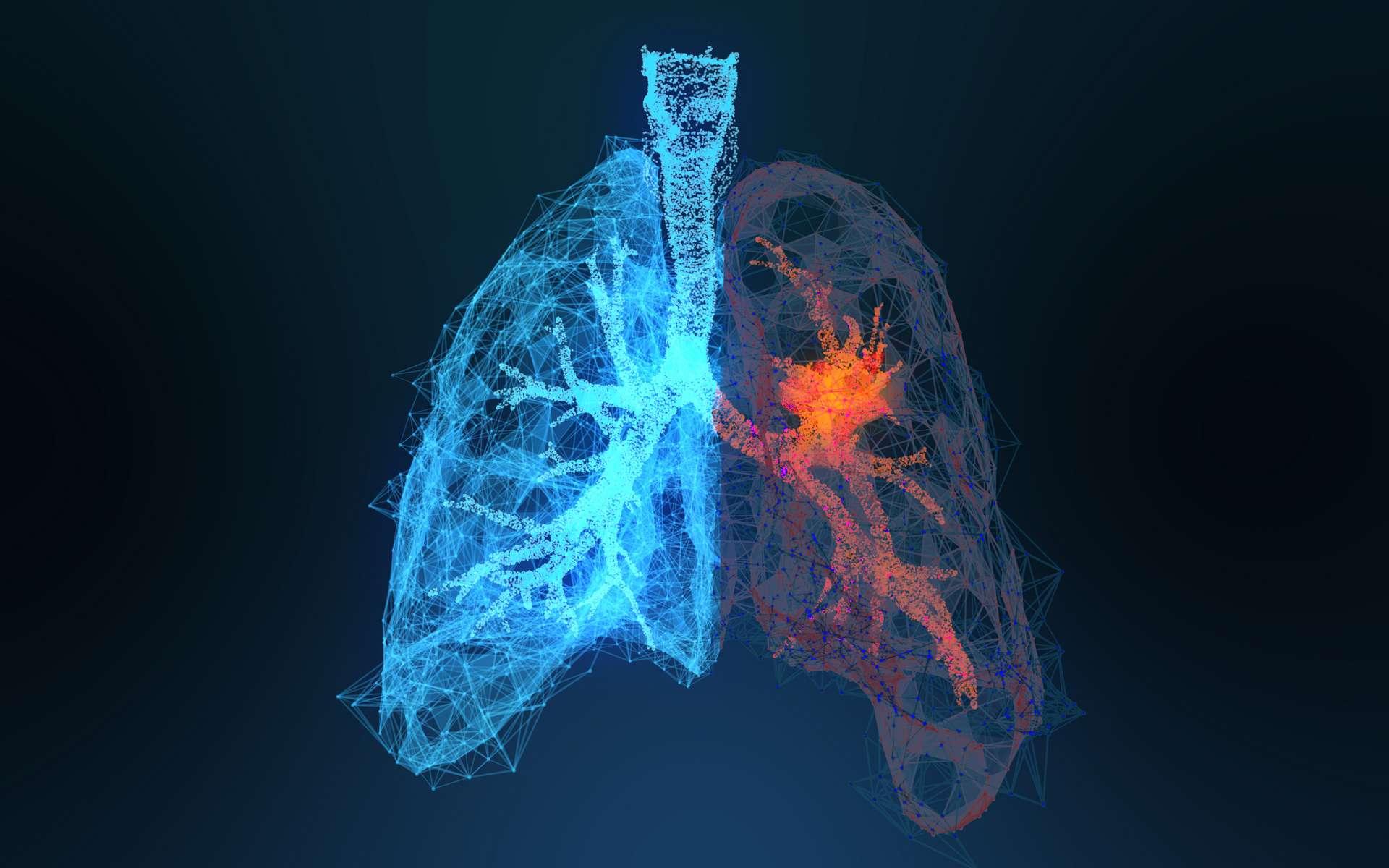 Il existe trois sous-types de cancer du poumon chez les non-fumeurs. © appledesign, Adobe Stock