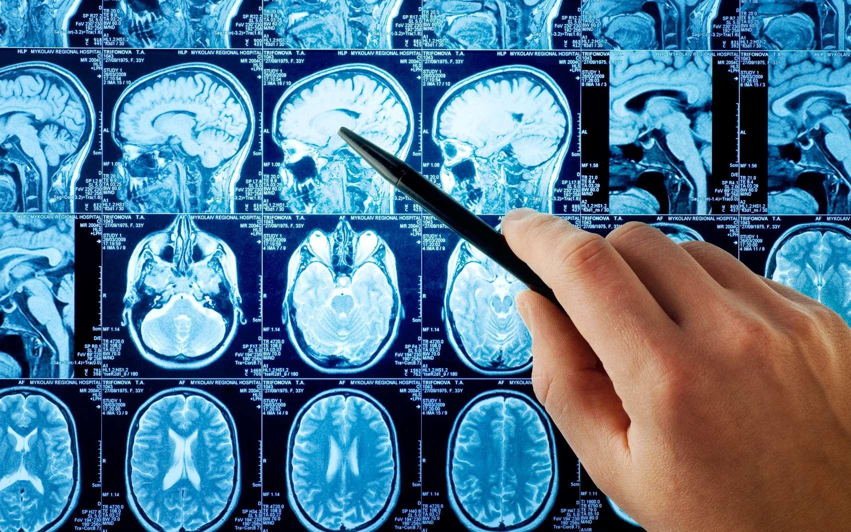 Les médecins ont constaté que le liquide pouvait passer par un trou du crâne. © Tryfonov, Fotolia