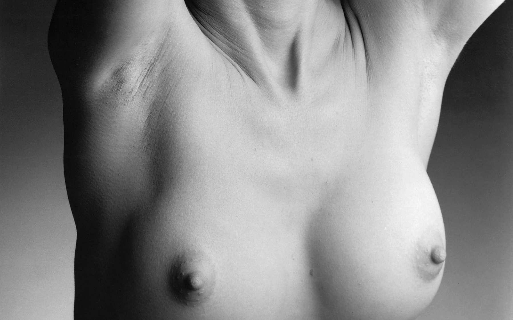 Environ 340.000 femmes seraient porteuses d'implants mammaires en France. Elles doivent surveiller leur état de santé régulièrement et changer d'implant tous les dix ans. © National Cancer Institute, Wikimedia Commons, DP