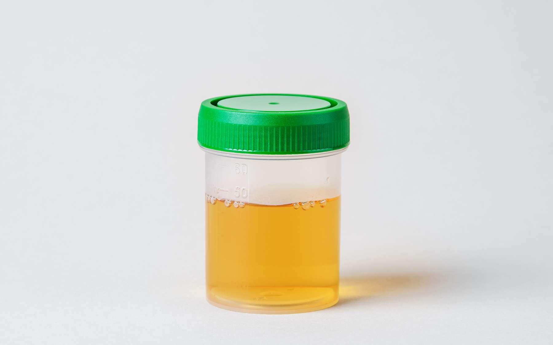 La couleur jaune de l'urine est liée à la présence d'urobiline. © adragan, Adobe Stock