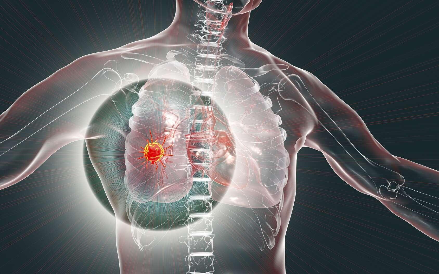 Une tumeur est due à la prolifération de cellules malignes ou bénignes. © Kateryna_Kon, Fotolia