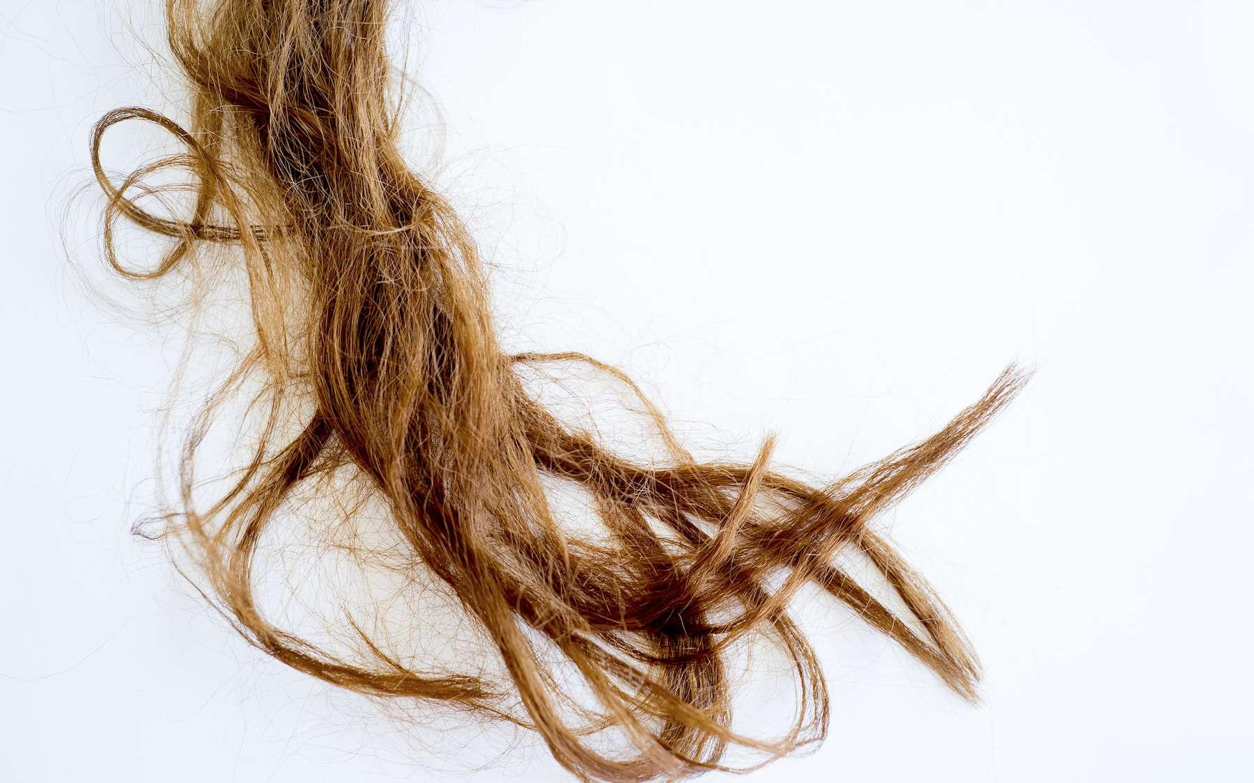 La trichotillomanie consiste à s'arracher les cheveux compulsivement. © Nichizhenova Elena, Adobe Stock