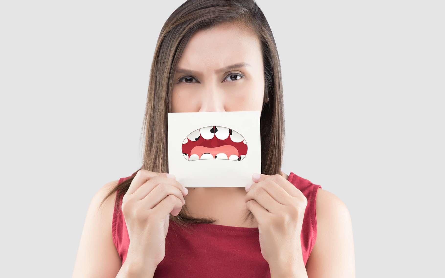 Une carie apparaît lorsque des bactéries détruisent l'émail, puis la dentine de nos dents. Mais, selon des chercheurs canadiens, le processus pourrait être aggravé par notre propre système immunitaire. © Adiano, Fotolia