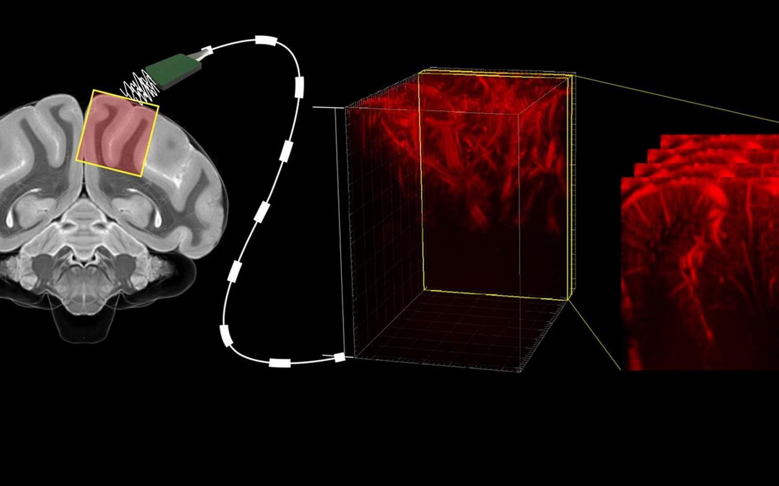 Des chercheurs sont parvenus à lire l'activité du cerveau grâce aux ultrasons. © Caltech