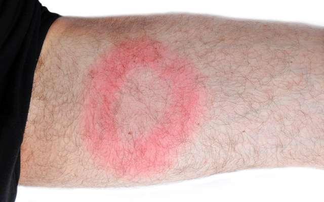 Maladie De Lyme Un Diagnostic Fiable Et Rapide Grâce à Une