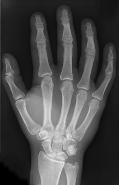 Os fossilisés : des dents de lézard rendues visibles aux rayons X ! Par Delphine Bossy, Futura-Sciences RTEmagicP_main-rayons-X_Hellerhoff-wiki-cc-by-sa-30_01_txdam33895_e54fa0