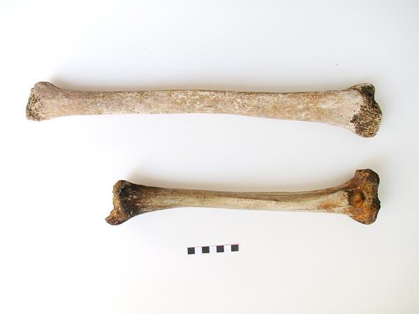 En bref : le plus vieux des géants romains Gigantism-found-in-roman-skeleton_Simona-Minozzi-Endocrine-Society