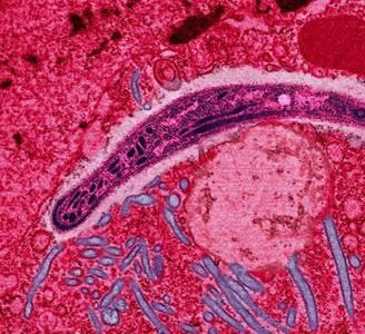 Plasmodium Falciparum, le parasite provoquant le paludisme chez l'Homme. Crédit Université J. Hopkins.