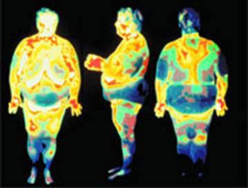 Une mutation responsable de certaines obésités