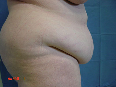Images obèses et enceintes