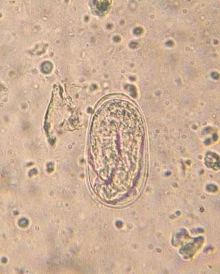 Bactéries et microbes en tout genre