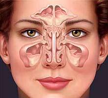 la sinusite par www.phyto-soins.com